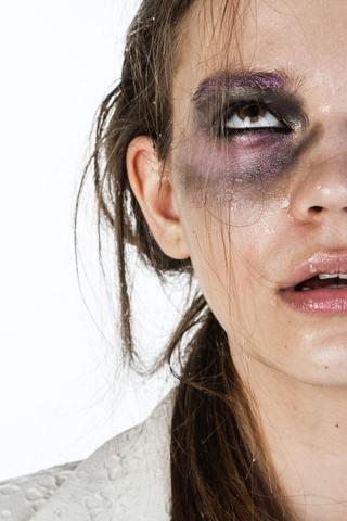 Mujer maltratada con un ojo morado