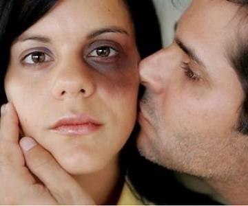 Maltratador besando a su pareja amoratada